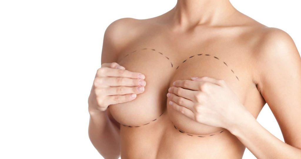 Lifting mammaire des seins tombants