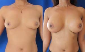 Avant / Après Augmentation mammaire par prothèses rondes 320cc pré-pectorale - cicatrice sous mammaire
