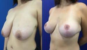 Réduction mammaire avec mastopexie (lifting mammaire)