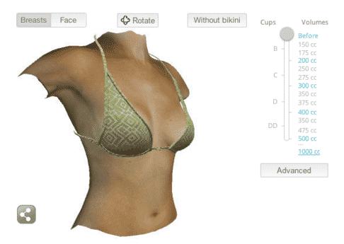 Simulation 3D dans l'augmentation mammaire par prothèses à Nice