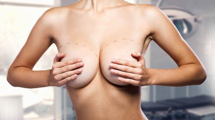 Augmentation mammaire en Dual Plane à Nice