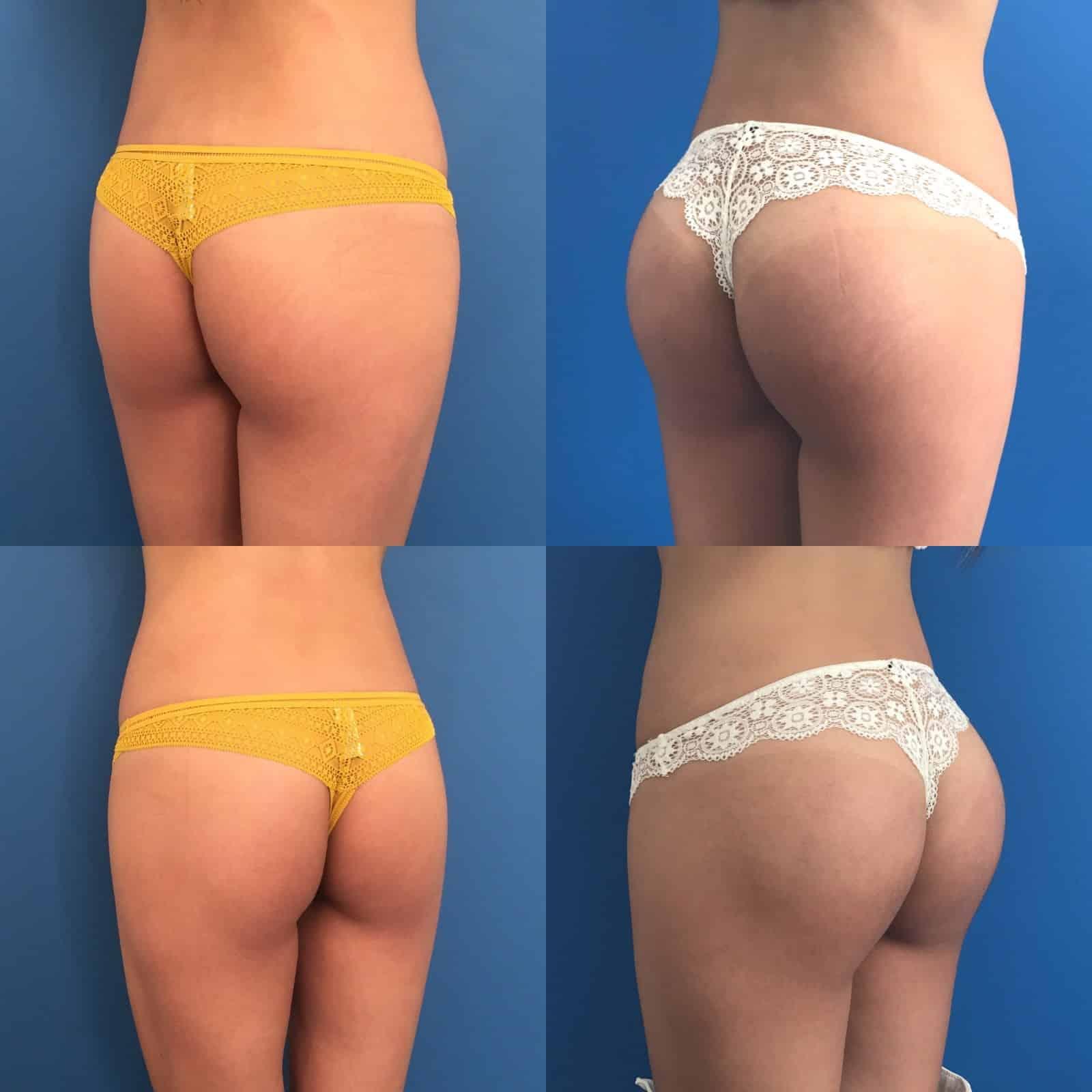 Augmentations des fesses par prothèses de fesses ou implants fessiers 4