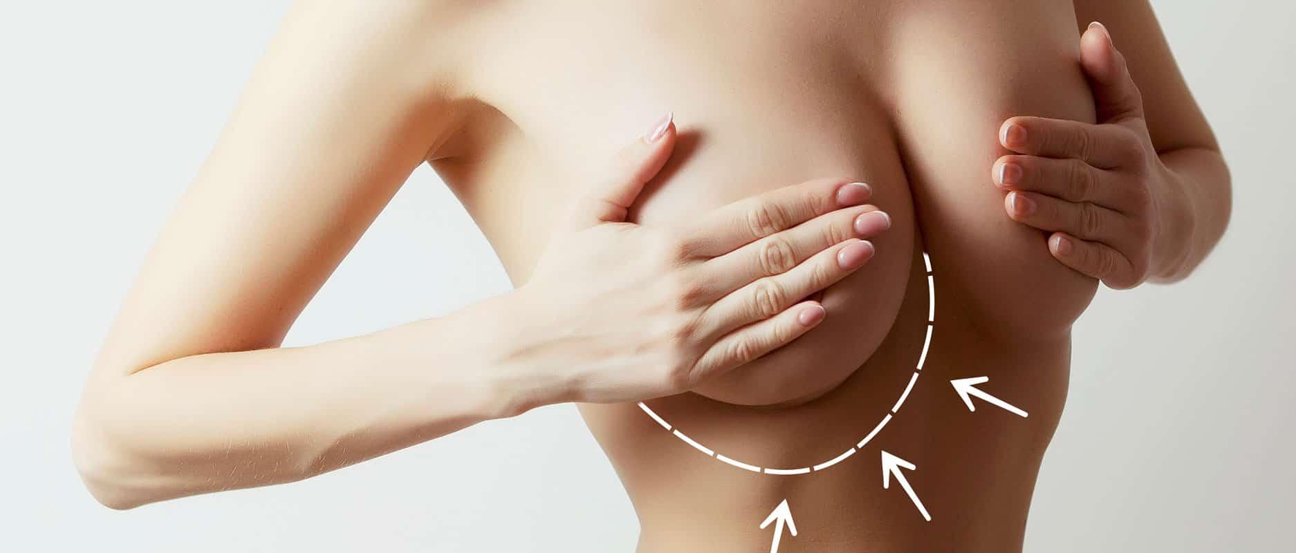 Augmentation mammaire : 10 questions réponses pour y voir plus clair